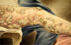 Unspecified skin condition during the Civil War, painted by Hermann Faber.