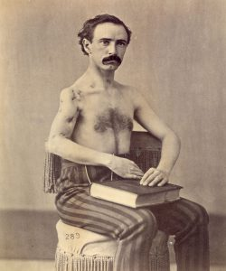 "A case of recovery after the excision of the humerus for gunshot injury involving the trachea, clavicle, and shoulder joint. Pvt. James P. Kegerreis, Company B, 2nd Pennsylvania Heavy Artillery. Wounded at the Battle of Petersburg, Va, 17 June 17 1864 by a conoidal ball which entered 3/4"" below the thyroid cartilage and to the left of the trachea, passed a little downwards and to the right under the jugular vein, carrying away one of the wings of the trachea and emerging 1/2"" above the clavicle, 3"" from point of entrance, was deflected in its course by hitting the butt of the musket and again entered in front of the right clavicle 2"" from the acromial end, passing through the surgical neck of the humerus, and emerging near the center of the deltoid muscle."