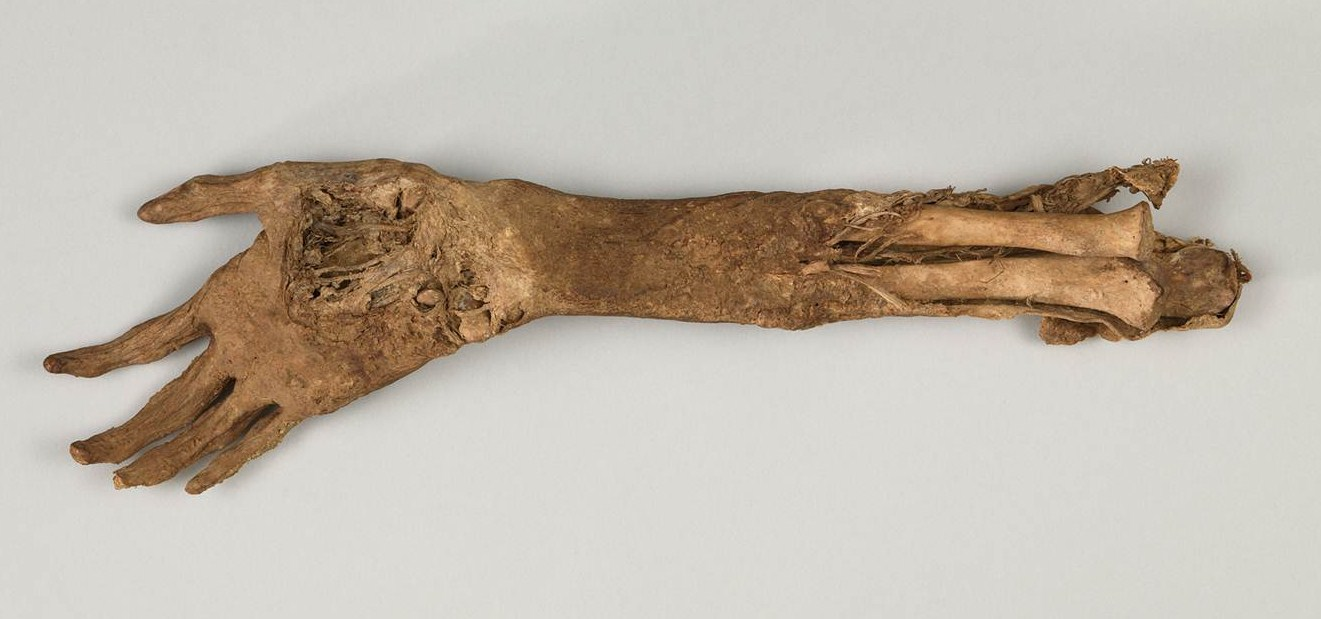 Arm found on the Antietam Battlefield after the war. From the collection of the NMCWM