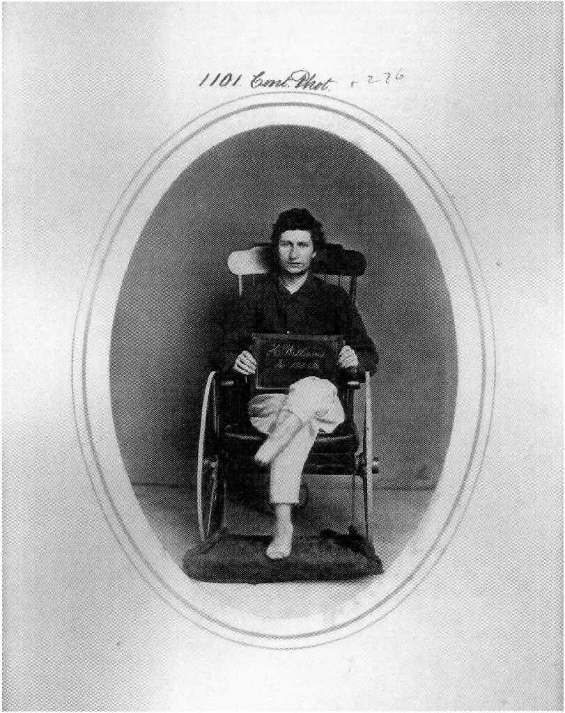 CDV of Hiram Williams in wheelchair. Courtesy of the National Library of Medicine, Bethesda, MD